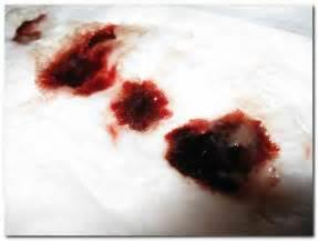 blut schleim stuhl acute hemorrhagic diarrhea ahds a cause of