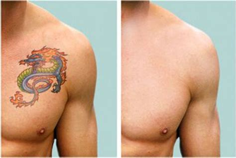 tattoo removal cost in jalandhar 1064nm home use nd yag laser tattoo removal machinemini