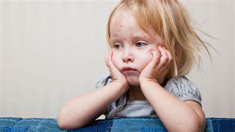 wann sind warzen ansteckend masern untersch 228 tztes virus mit fatalen folgen