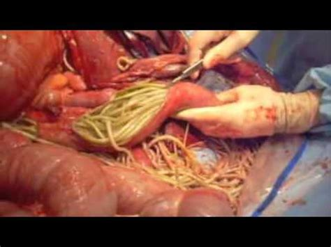 Impacted Stool Symptoms by Ascarid Impaction Equine Small Intestine