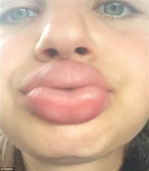 kim kardashian shot glass lips kylie jenner challenge sees teens suck shot glasses to