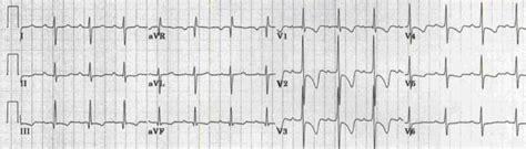 Type B Rvh - دسـتورات دارویـی r wave in v1