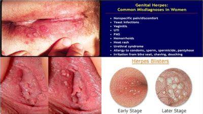 Obat Herpes Simplex Genitalis bagaimana cara mengobati penyakit herpes genitalis obat