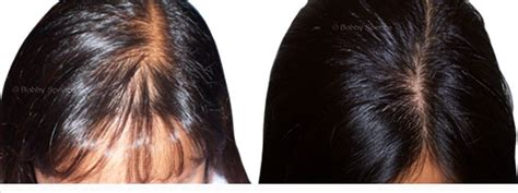 rogaine for women before and after photos minoxidil 2 hair regrowth bobby spence