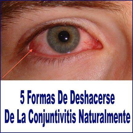 imagenes ojos con conjuntivitis 5 formas de deshacerse de la conjuntivitis naturalmente