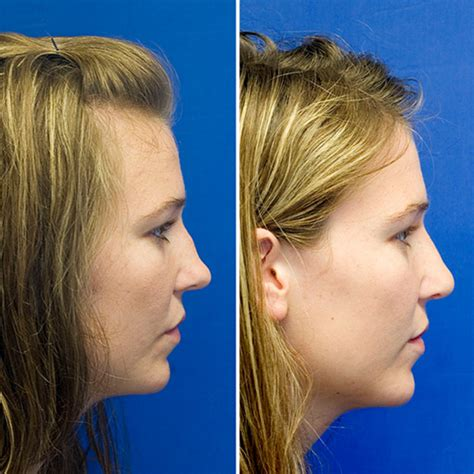 broken nose repair rhinoplasty in seattle rhinoplasty