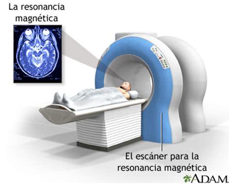 imagenes medicas resonancia magnetica resonancia magn 233 tica de la cabeza medlineplus