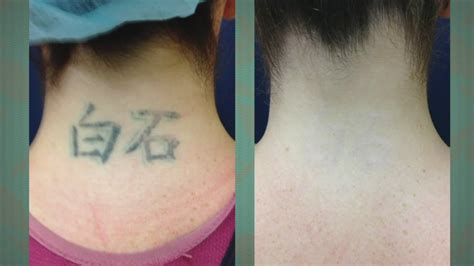 tattoo removal process guaranteed work a new tattoo removal procedure at vein and skin center of