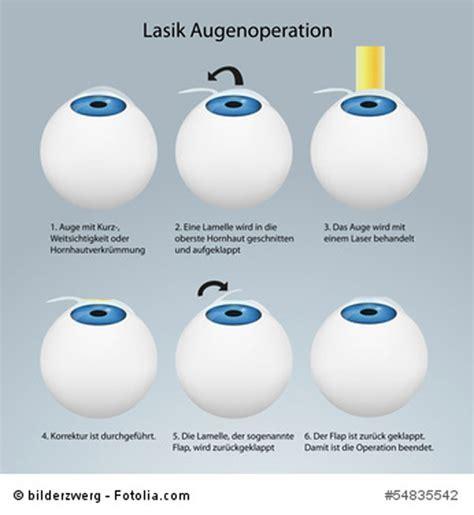 wann augen lasern augen lasern ein jahr danach