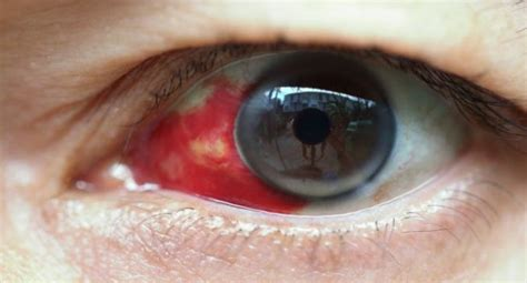 eye bleeding what is bleeding eye fever 10 facts about crimean congo hemorrhagic fever read