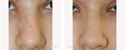 A Plus Laser Beirut by Laser Surgery Beirut Lebanon Skin Surgery Botox Laser