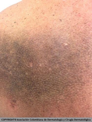 imagenes de manchas oscuras en la cara manchas caf 233 con leche manchas en la piel causas y