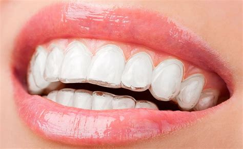 comfort dental braces cost cost of invisible braces cheap invisible braces