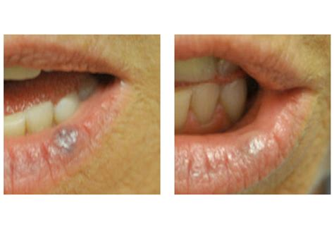 blood vessel treatment rosacea redness
