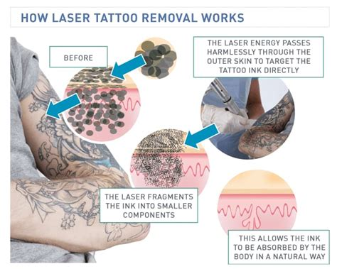 magic wand tattoo removal the science laser removal how it works