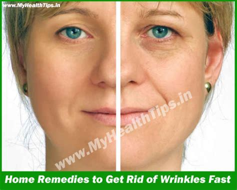 Best Home Remedies to Get Rid of Wrinkles Fast