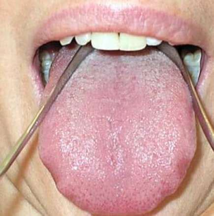 Detox Tongue Cleaner by Cleaning The Tongue For Detoxification Of The Weight