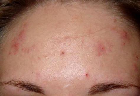 Acnes Spot mild acne vulgaris on forehead hormonal acne treatment