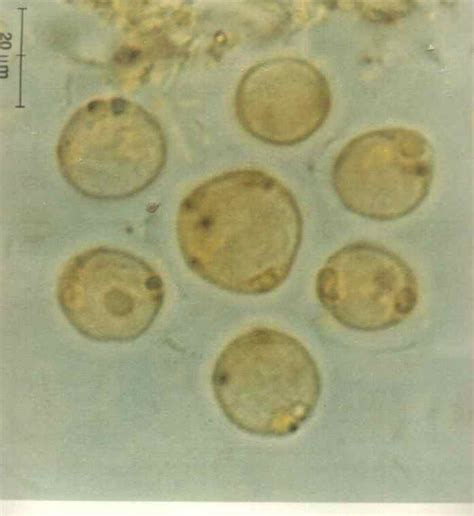 Stool Cyst by Blastocystis Hominis Parasite