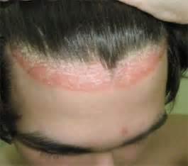 oorzaken en behandeling psoriasis de hoofdhuid