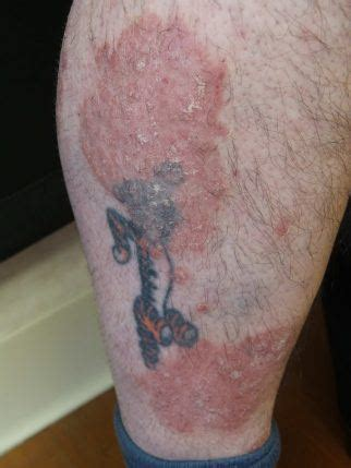 tattoos and psoriasis psoriasis 2 skincare physicians