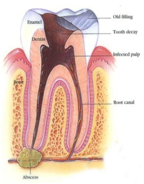fistola interna root canal surgery endodontist diagnosis treatment post