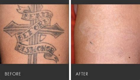 nashville tattoo and hair removal 17 best images about laser treatments at