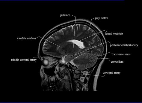 sectional anatomy cross sectional anatomy mri brain sagittal anatomy