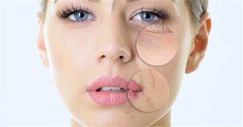 pelle secca alimentazione rimedi alla secchezza viso heliantus