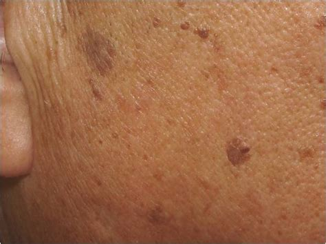 light spots on skin from sun resources for health care professionals dr
