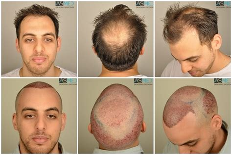 fue results with short hair asmed hair transplant results gallery norwood 5