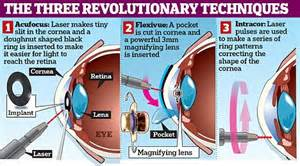 lasers could put an end to reading glasses and