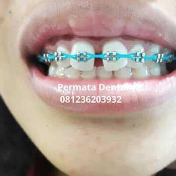 Gigi Palsu Gigi Tonggos ahli gigi bali proses pemasangan behel bracket atau
