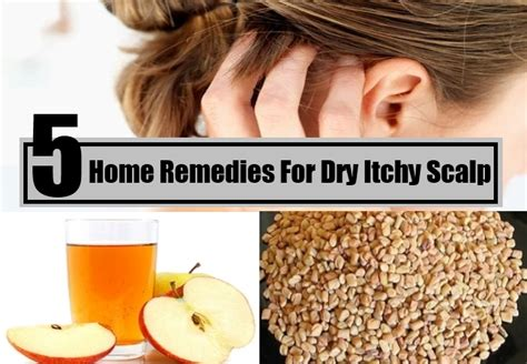 itchy scalp home remedies treatments cure
