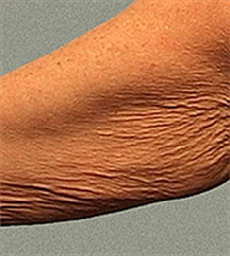crepey skin on arms body by thermage quot before quot arm 1 cosmopolitan skin care