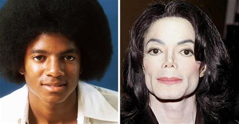why did michael jackson change his skin color why did michael jackson change the color of his skin