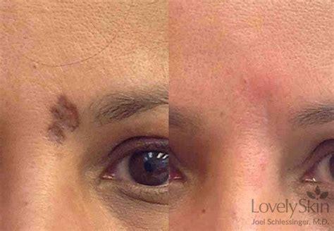 best scar scar removal treatment omaha dermatology skin