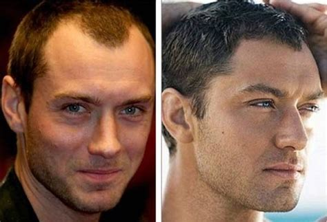 testa sinonimo testa grande cirurgias e cortes de cabelo pra disfar 199 ar