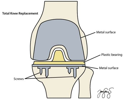 total knee replacement diagram knee replacement melbourne