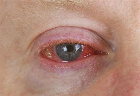 conjunctivitis treatment bacterial conjunctivitis treatment with home remedies health care tips and