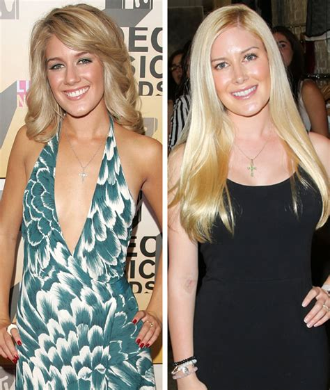 Heidi Montag Plastic Surgery by Heidi Montag Other Had Just As Many Surgeries