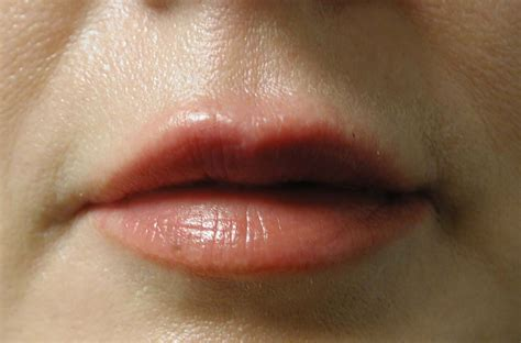 Injection Collagen chicago collagen lip injections view the result of