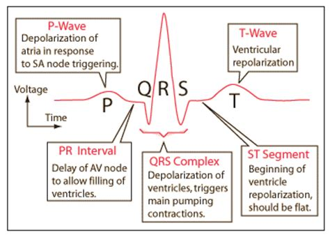 Ecg Pattern Meaning | arrhythmias overview electrical conduction ekg basics
