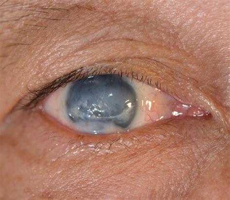 glaucoma eye specialists sydney eye specialists