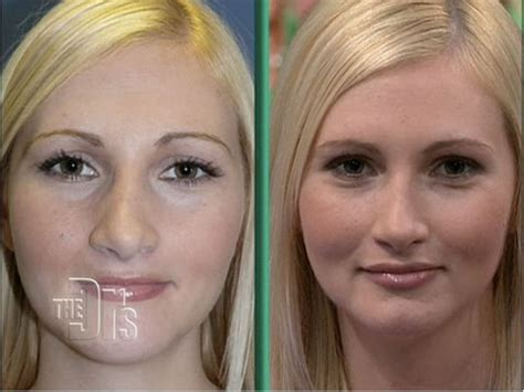 perms after surgery a permanent lip plumper cupid s bow surgery ahb