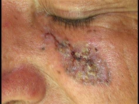 cancer de piel prevenci 243 n ante el c 225 ncer de piel youtube
