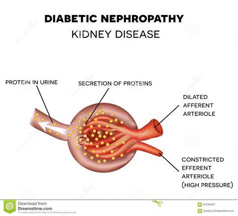m protein kidney diabetic nephropathy glomerulus anatomy stock vector