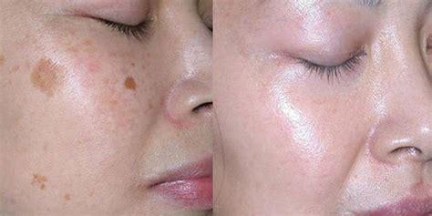 Krim Wajah Di Larissa cara menghilangkan flek hitam di wajah dengan liyoskin