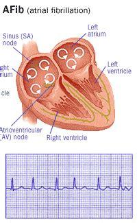 atrial fibrillation coagulation conversation