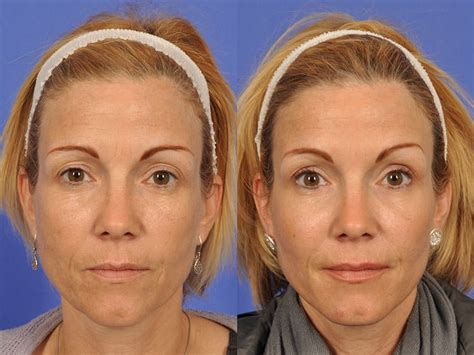 45 year old woman before and after surgery w cosmetic surgery 174 botox before after photo gallery